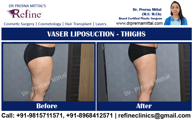liposuction for thighs